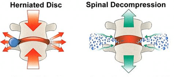 Effects of Spinal Decompression Bradley Chiropractic Nutrition Center