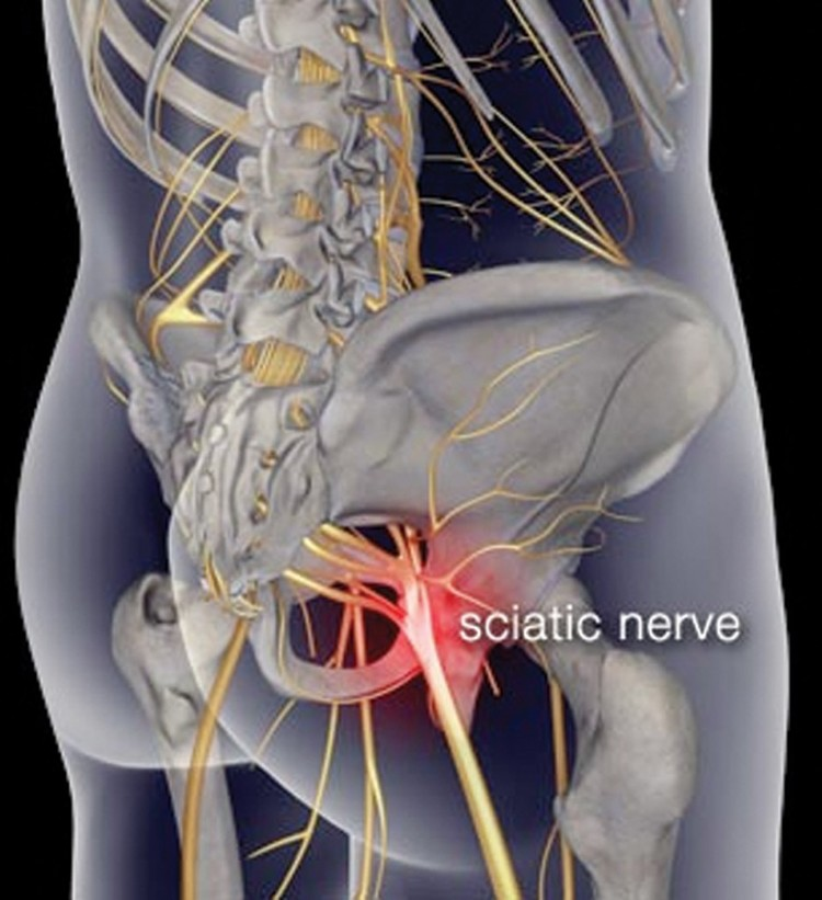Sciatica Causes And Self Treatment Tips From Dr Bradley